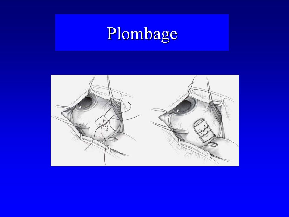 Plombage
