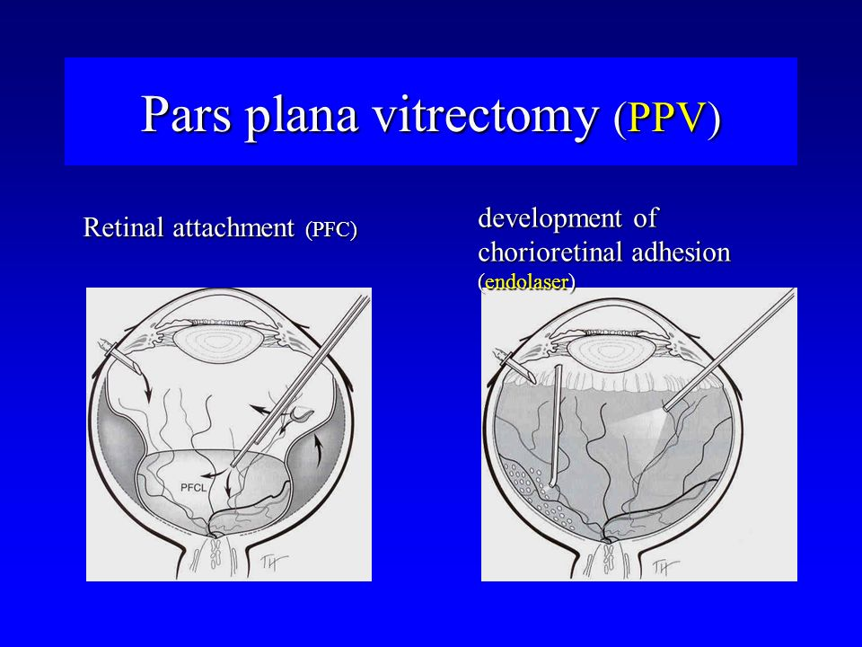 Pars plana vitrectomy (PPV)