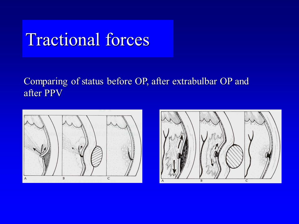 Tractional forces Comparing of status before OP, after extrabulbar OP and after PPV