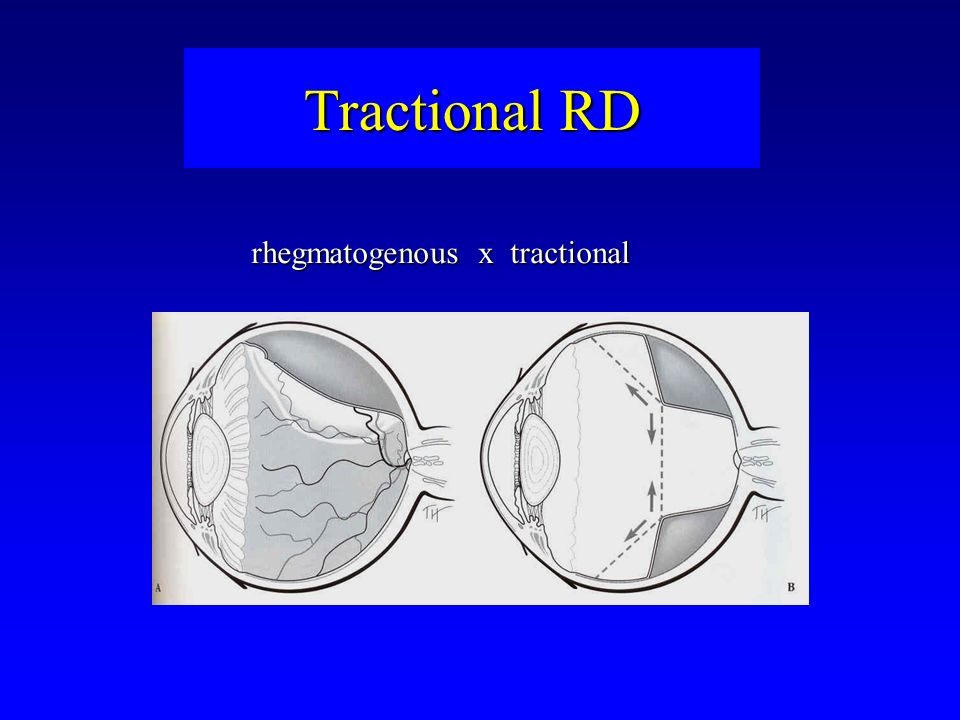 rhegmatogenous x tractional