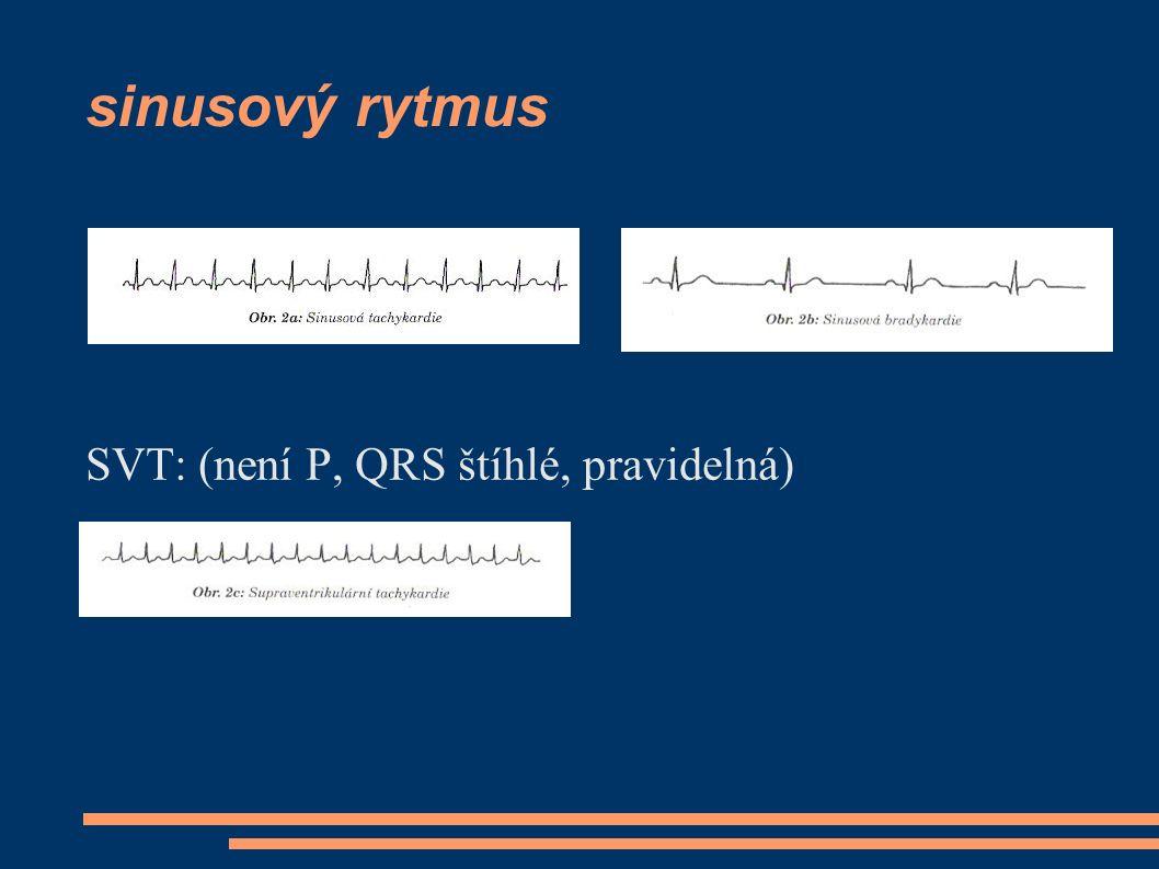 sinusový rytmus SVT: (není P, QRS štíhlé, pravidelná)