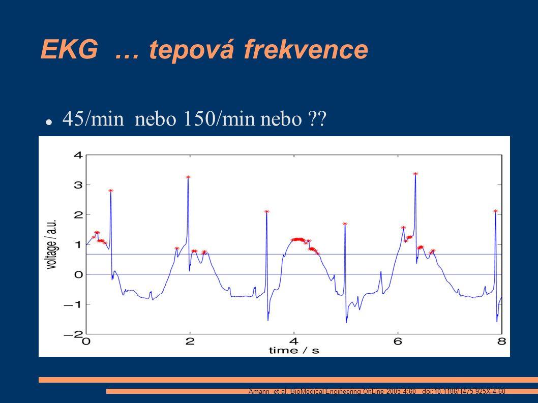 EKG … tepová frekvence 45/min nebo 150/min nebo