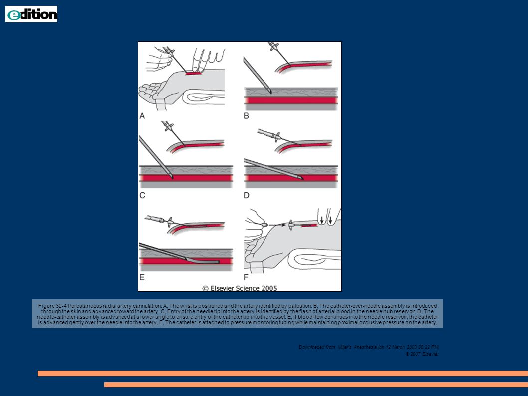 Figure 32-4 Percutaneous radial artery cannulation