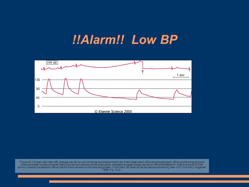 !!Alarm!! Low BP