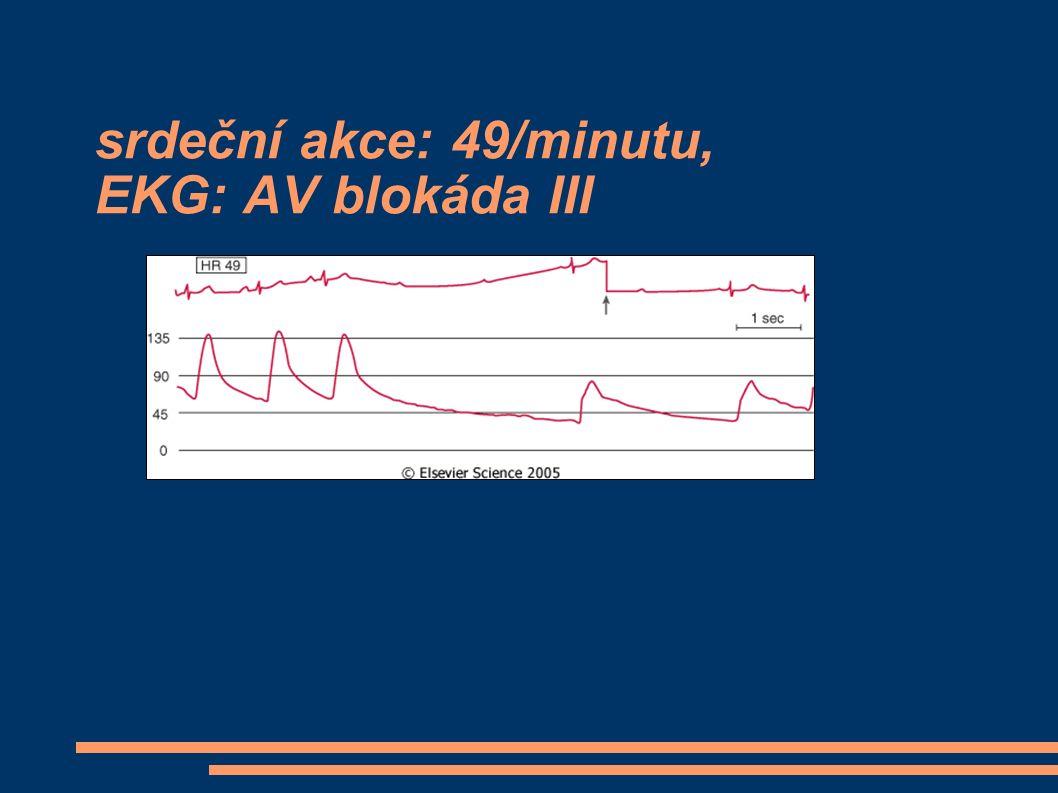 srdeční akce: 49/minutu, EKG: AV blokáda III
