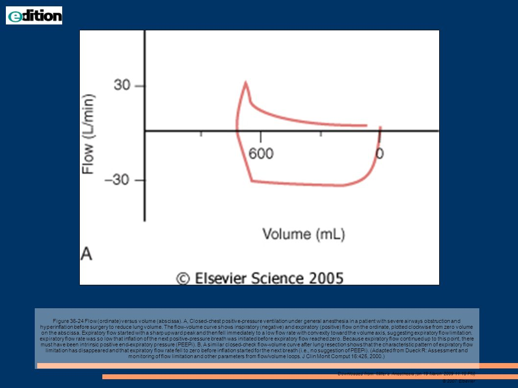 Figure 36-24 Flow (ordinate) versus volume (abscissa)