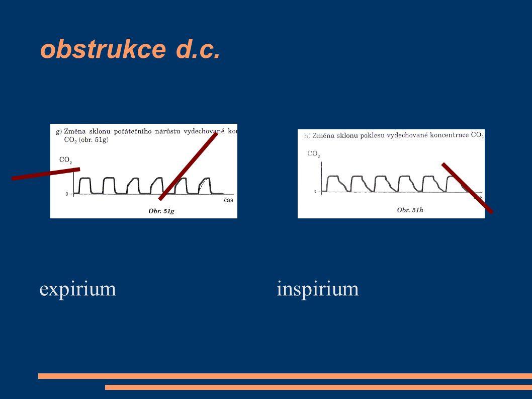 obstrukce d.c. expirium inspirium
