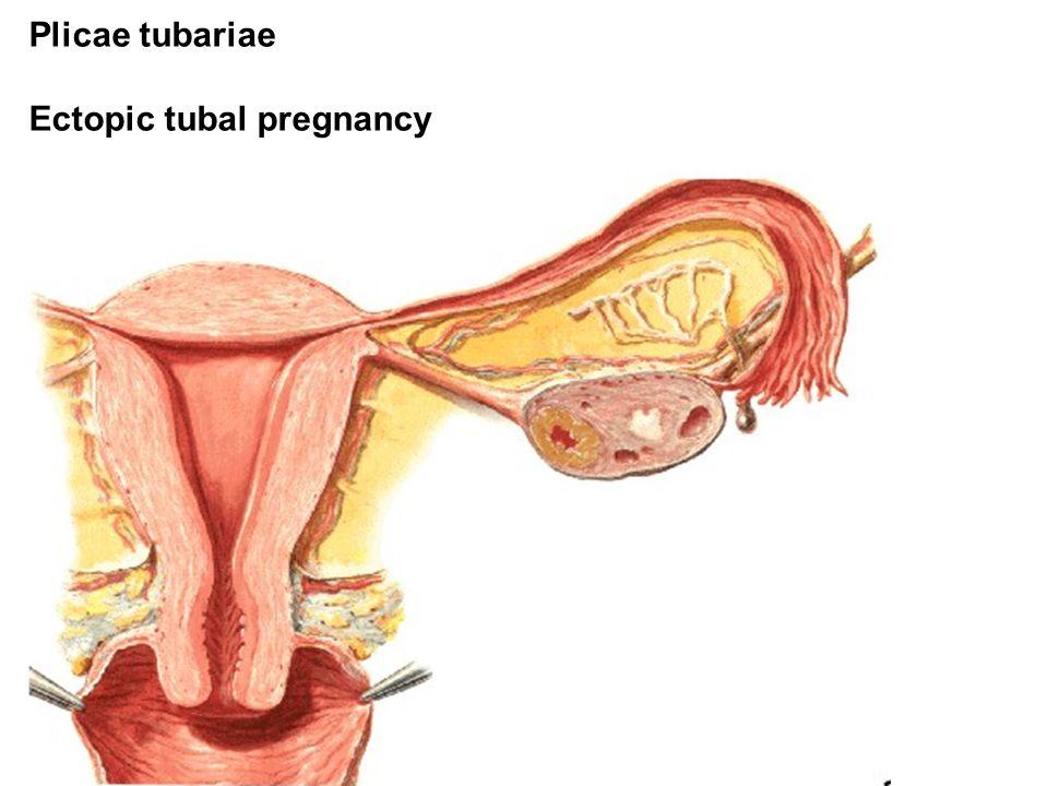 Plicae tubariae Ectopic tubal pregnancy