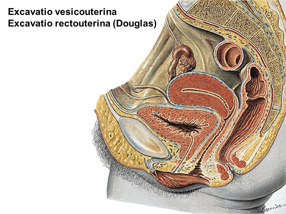 Excavatio vesicouterina