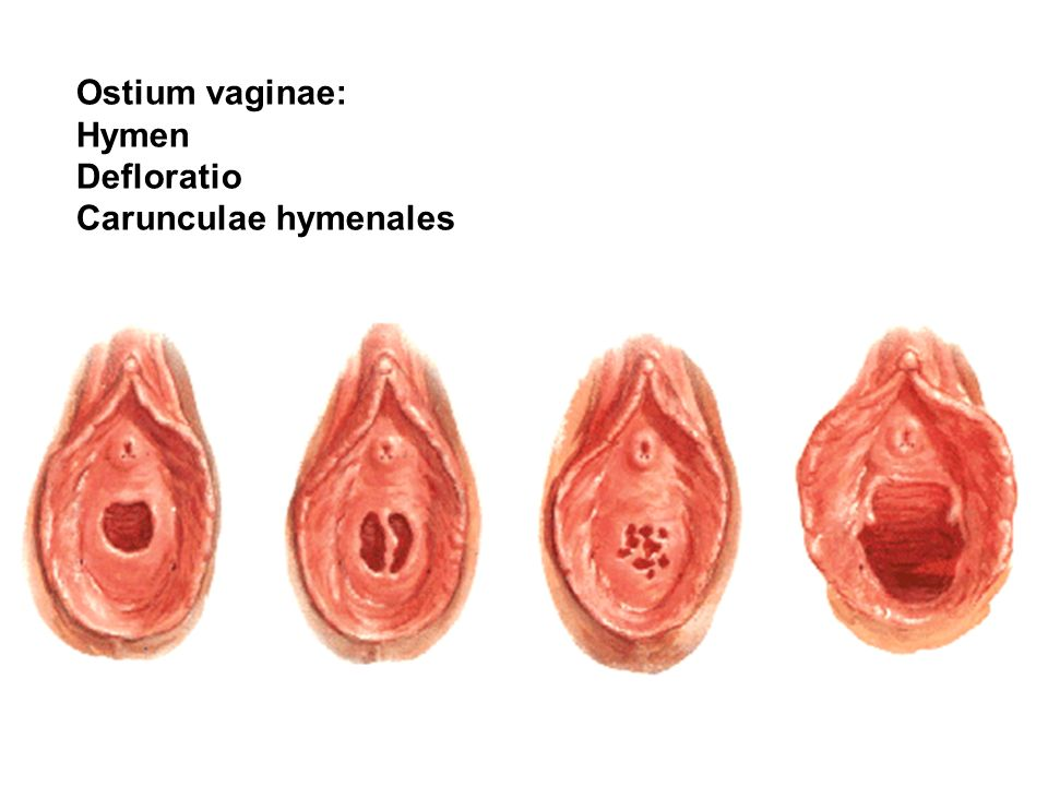 Ostium vaginae: Hymen Defloratio Carunculae hymenales