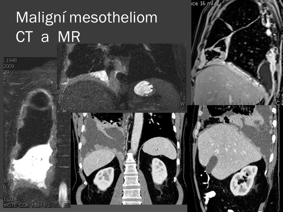 Maligní mesotheliom CT a MR