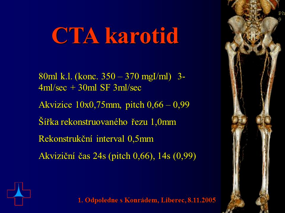 CTA karotid 80ml k.l. (konc. 350 – 370 mgI/ml) 3-4ml/sec + 30ml SF 3ml/sec. Akvizice 10x0,75mm, pitch 0,66 – 0,99.