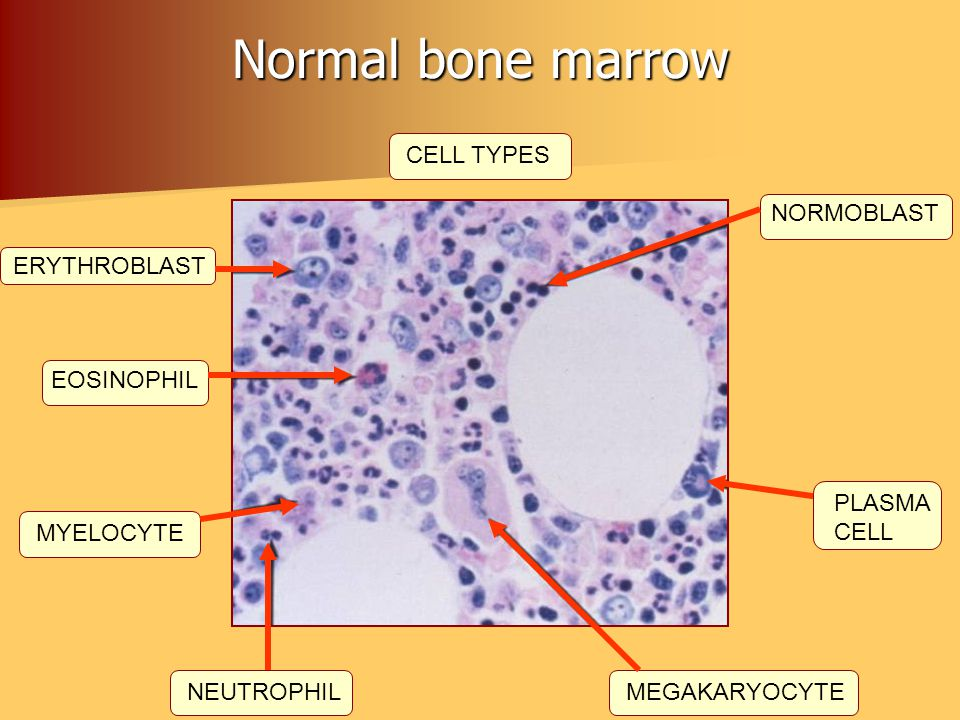 Normal bone marrow CELL TYPES NORMOBLAST ERYTHROBLAST EOSINOPHIL