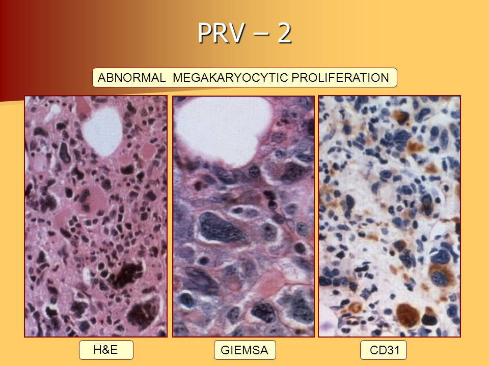 ABNORMAL MEGAKARYOCYTIC PROLIFERATION
