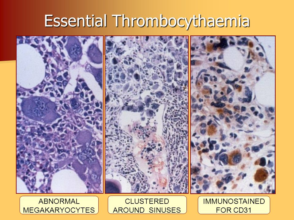 Essential Thrombocythaemia