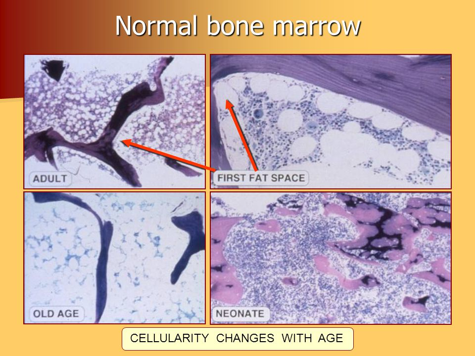 Normal bone marrow CELLULARITY CHANGES WITH AGE