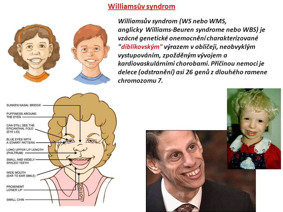 Williamsův syndrom