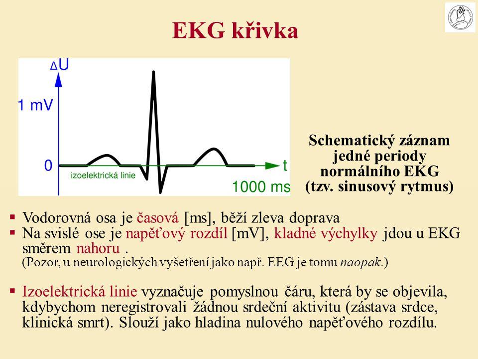 připojte vodiče EKG sleduj, jak jsem dostal háček na violu