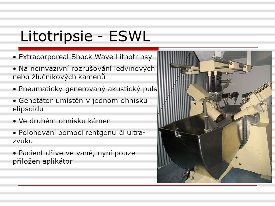Litotripsie - ESWL Extracorporeal Shock Wave Lithotripsy