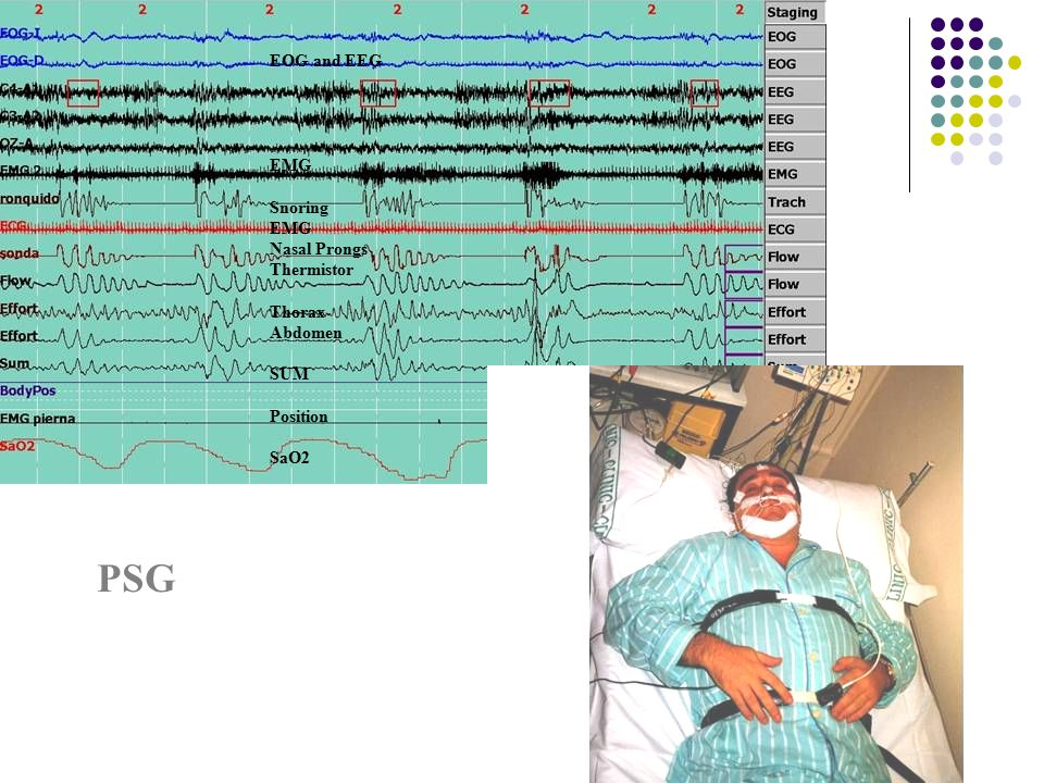 PSG EOG and EEG EMG Snoring Nasal Prongs Thermistor Thorax Abdomen SUM