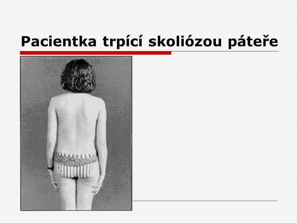 Skolióza páteře Petra Krajčová. - ppt stáhnout c575fd6039